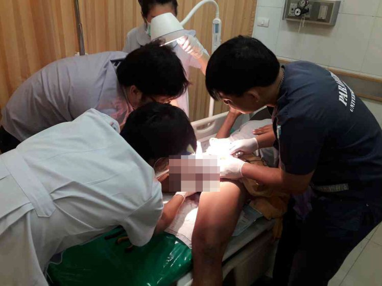 A man getting his penis operated in